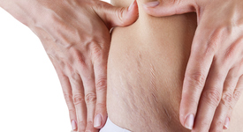 Няколко съвета срещу стрии по кожата
