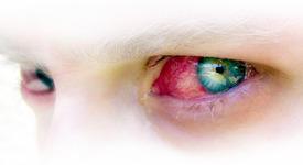 10-те най-странни болести