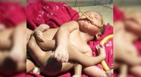 Бебе с четири ръце и четири крака беше обявено за божествено [+ видео]