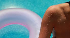 5 съвета за предпазване от слънчево изгаряне