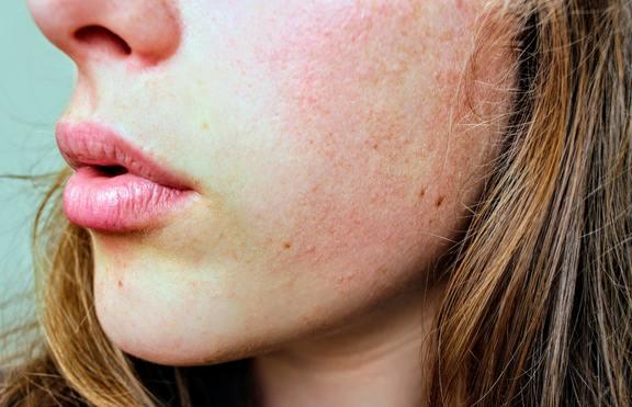 3 знака, че кожата ви е стресирана