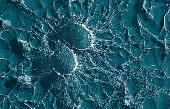 Състав и структура на клетъчната стена при архебактериите